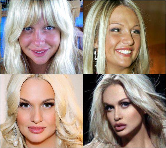 Татьяна Овсиенко после пластики лица 15 фото
