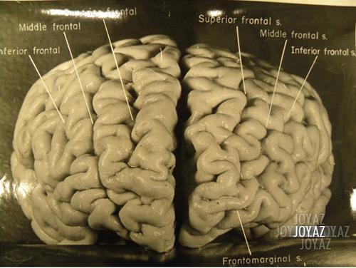Beyin xərçəngi necə müalicə edilir?