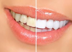 Отбеливание зубов в медцентре