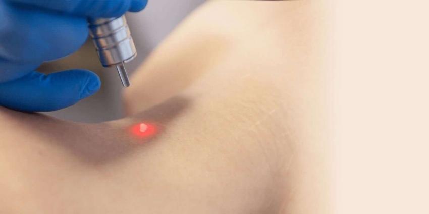 Лазерное удаление папиллом в Киеве можно в клинике LaserOne